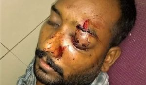 Pakistan: Christian loses sight in one eye in brutal attack by Muslim neighbors