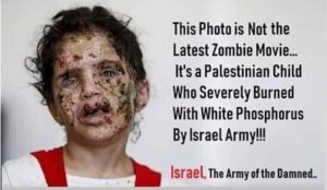 "Supporters of ""Palestinian"" jihad use photo of girl injured in Yemen to claim Israeli war crimes in Gaza"
