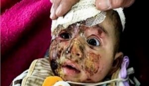 Photo of baby injured in Iraq in 2017 used to claim Israel is committing atrocities now
